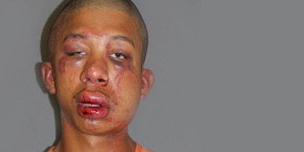 Polizei verteidigt Prügel-Vater