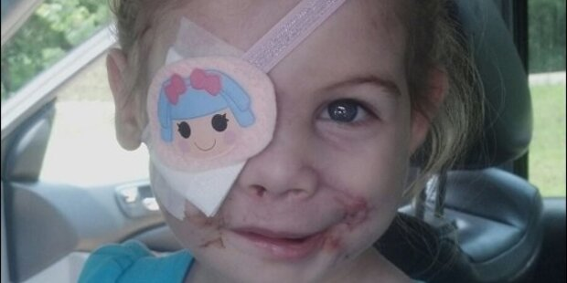 3-Jährige wegen Narben aus Lokal geworfen