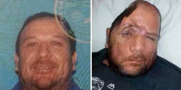 Polizei schoss ihm ein Viertel des Schädels weg