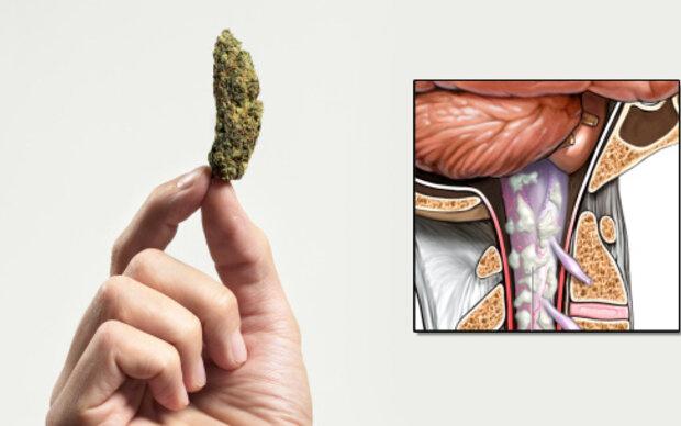 Cannabis kann MS nicht stoppen