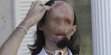Mann ohne Gesicht erhält neues Antlitz
