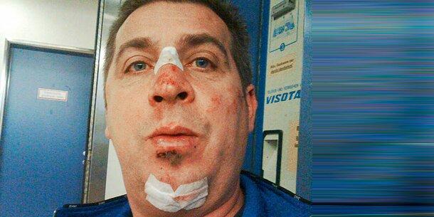 Hooligan verprügelt fp politiker