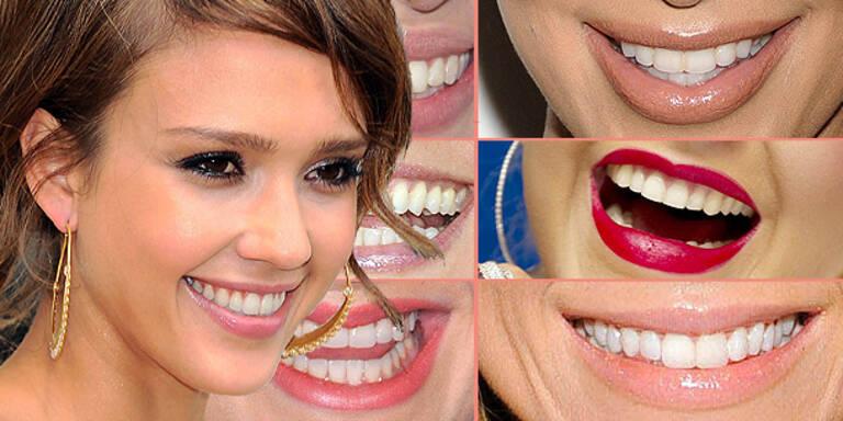 Ein Zahnpasta-Lächeln wie die Stars