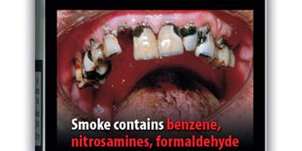 Mehr Ekel-Fotos auf Zigarettenpackerln