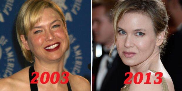 Zellweger (43): Botox- & Alk-Overkill?